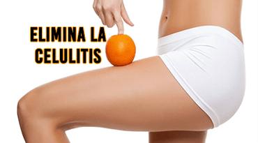 Como Eliminar y Prevenir la Celulitis